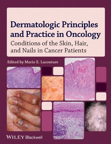 Dermatologic Principles and Practice in Oncology: Conditions of the Skin, Hair, and Nails in Cancer Patients