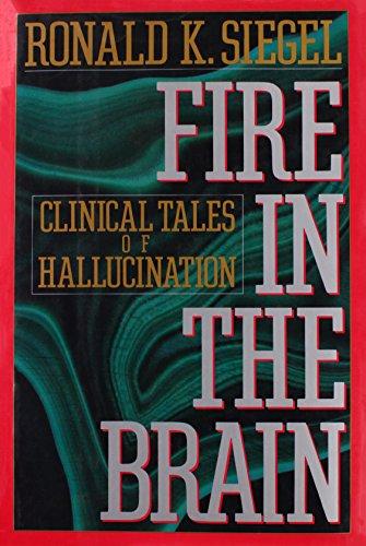 Fire in the Brain: 2の詳細を見る