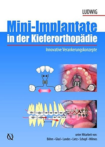 Mini implants in Orthodontics: Innovative Anchorage Concepts