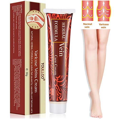 Varicose Veins Cream, Varicose Vein Treatment, Vein Cream for Spider Veins, Relief Phlebitis Angiitis Inflammation Blood Vein Veins Vasculitis Treatment Legs, Herbal Care Ointment Relief Phlebitis 30g