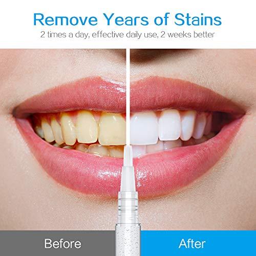 Cacorry Teeth Whitening Pen Teeth Whitening Gel Sensitive Teeth