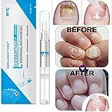 Lorenlli 3ML Tratamiento de uñas fúngicas Pluma Onicomicosis Paroniquia Anti infección de uñas fúngica Toe Chino a Base de Plantas Tratamiento de Hongos en Las uñas