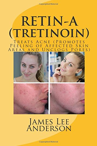 RETIN-A (Tretinoin): Treats Acne (Promotes Peeling of Affected Skin Areas and Unclogs Pores)