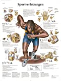 3B Scientific VR0188L - Póster explicativo sobre lesiones deportivas (en...
