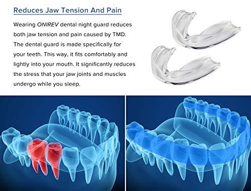 [6 in 1]Bite contro il Bruxismo – dispositivo professionale - Termosensibile - notturno -trattamento ATM – evita il digrignamento dei denti- adulti & bambini – Garanzia soddisfatti al 100%