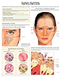 Sinusitis e chart: Full illustrated