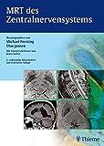 MRT des Zentralnervensystems - Michael Forsting