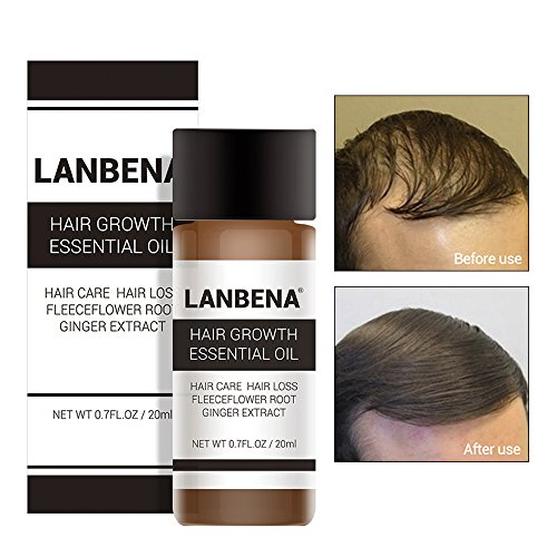 LANBENA Hair Growth Serum,Organic Hair Growth Oils for Hair Thickening by Hair Thickness Maximizer. Best Treatment for Hair Loss, Thinning Hair,Fuller and Faster Growing Hair.