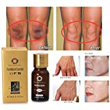 Huile éclaircissante ultra-éclaircissante Éliminer les cicatrices d'acné Brûler les vergetures Huile de soin de la peau Huile naturelle pure-éclaircissante d'essence pour la peau 10 ml (3 pièces)