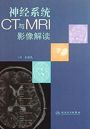 神经系统CT与MRI影像解读