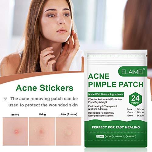 Morningtime Pegatina Parches de acné 24 Parches Parches hidrocoloides Parches de Manchas Pegatinas para el acné Parche de curación del acné Cuidado de la Cara