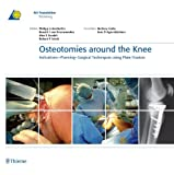 Osteotomies around the Knee: Indications-Planning-Surgical Techniques using Plate Fixators (AO-Publishing) (English Edition)