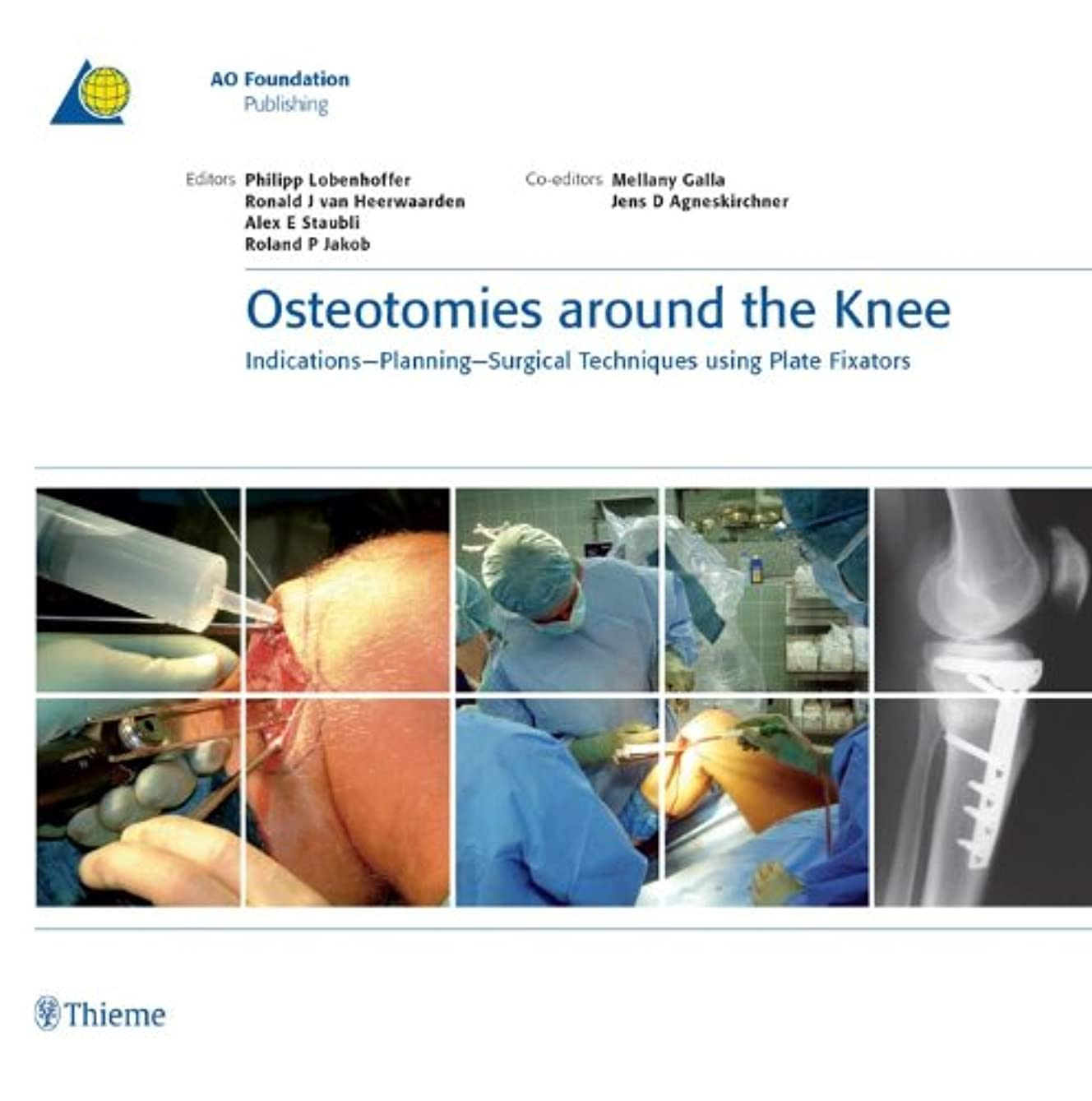 精神的にグラフィック英語の授業がありますOsteotomies around the Knee: Indications-Planning-Surgical Techniques using Plate Fixators (AO-Publishing) (English Edition)