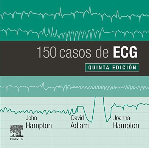 150 Casos De Ecg - 5ª Edición