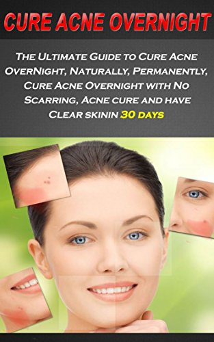 Acne The Ultimate Guide To Cure Acne Overnight Naturally Permanently Cure Acne Overnight With No Scarring Acne Cure And Have Clear Skin In 30 Days Health And Wellness Book 2 Kindle