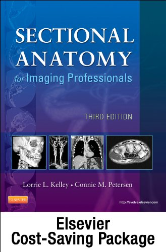 Mosby's Radiography Online for Sectional Anatomy for Imaging Professionals (Access Code, Textbook, and Workbook Package)