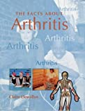 FACTS ABOUT ARTHRITIS - Claire Llewellyn