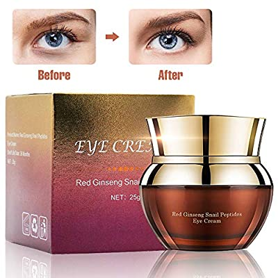 Charmss Eye Cream Anti-Aging Anti-Wrinkle Improve Fine Lines and Wrinkles, Remove Dark Circles and Bags for Under and Around Eyes,Moisturizing Eye Cream(25g).