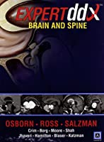 EXPERTddx™: Brain and Spine (Expert Differential Diagnoses)