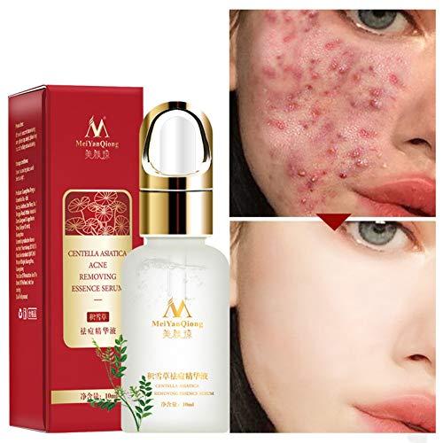 Centella Asiatica - Suero para eliminar el acné, suero facial Centella Asiatica Extracto – para piel sensible y propensa al acné