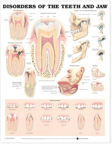 Disorders of the Teeth and Jaw A...