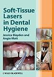 Soft-Tissue Lasers in Dental Hygiene (English Edition)