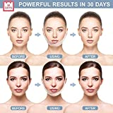 Double Chin Reducer Face Slimming Strap V Line Lifting Mask Chin Strap for Women and Men Anti-Wrinkle Face Mask for Double Chin and Saggy Face Skin