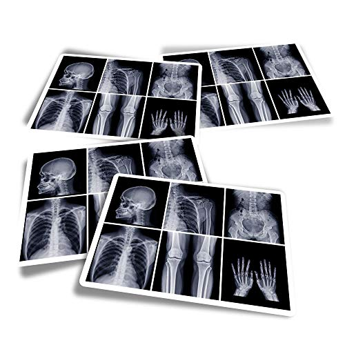 Vinyl Rectangle Stickers (Set of 4) - Radiology Doctor Hospital X-Ray Science Fun Decals for Laptops,Tablets,Luggage,Scrap Booking,Fridges #24453
