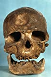 The Poster Corp Cro-Magnon Skull. /Nfrontal View of Skull