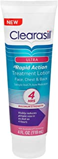 Clearasil Ultra Rapid Action Treatment Lotion, 4 fl. Oz., for face, chest & back