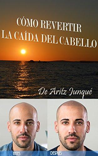 Cómo Revertir La Caída Del Cabello (o Pelo): (Calvicie, alopecia, solución natural, minoxidil, naturologo, caída cabello, alopecia tratamiento, alopecia causas, alopecia sintomas, alopecia genetica)