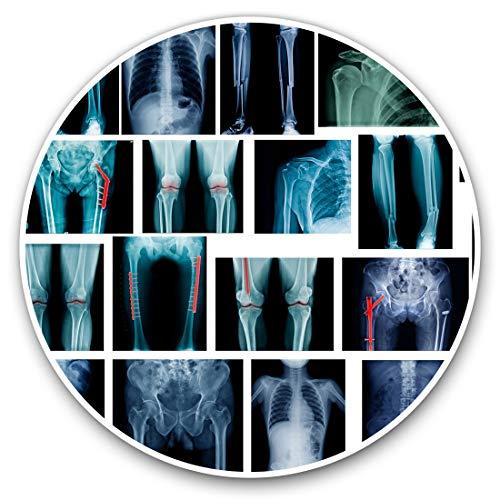 Pegatinas de vinilo (juego de 2 unidades, 7,5 cm, placa de fractura de huesos de rayos X, #21685