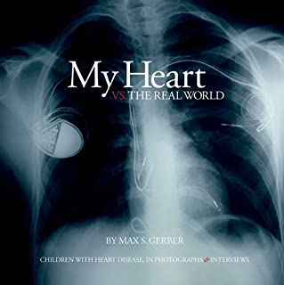 My Heart vs. the Real World: Children with Heart Disease, In Photographs & Interviews