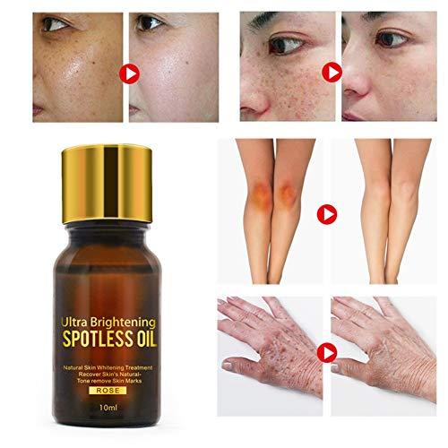 Huile éclaircissante ultra éclaircissante, soins de la peau 10ml blanchissant éclaircissant naturel pur supprimer les taches d'acné, réduire les taches sombres, cicatrices d'acné, rides huiles de Rose
