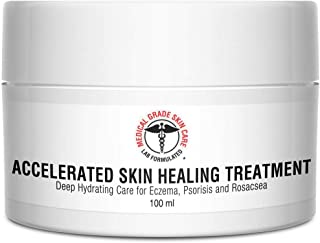 Eczema, Rosacea, Dermatitis, and Psoriasis Cream | Medical Grade Accelerated Skin Healing Treatment | Deep Hydrating Skin Lotion | Instant Skin Relief