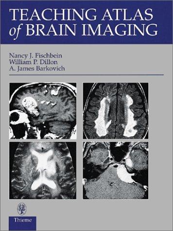 Teaching Atlas of Brain Imaging (Teaching Atlas Series)