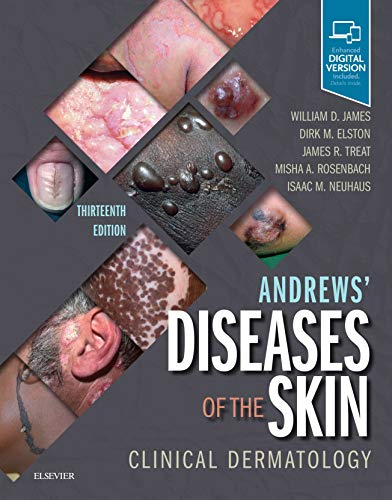 Compare Textbook Prices for Andrews' Diseases of the Skin: Clinical Dermatology 13 Edition ISBN 9780323547536 by James MD, William D.,Elston MD, Dirk,Treat MD, James R.,Rosenbach MD, Misha A.,Neuhaus MD, Isaac
