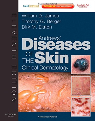 Andrews' Diseases of the Skin: Clinical Dermatology - Expert Consult - Online and Print (James, Andr