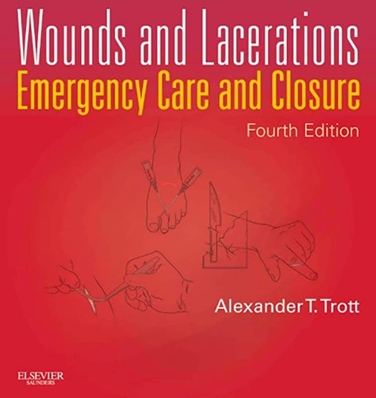 設置異邦人ハッチWounds and Lacerations - E-Book: Emergency Care and Closure (English Edition)