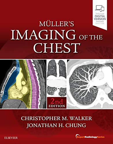 Compare Textbook Prices for Muller's Imaging of the Chest: Expert Radiology Series 2 Edition ISBN 9780323462259 by Walker MD, Christopher,Chung MD, Jonathan Hero