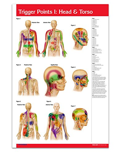 trigger point wall chart - 7
