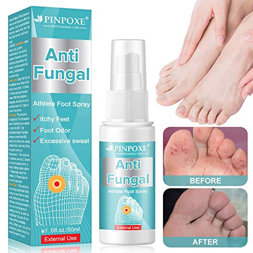 Athletes Foot Spray, Spray para pies, Pies Fungus Treatment, Pies Treatment, Ayuda a tratar y restaurar la apariencia del pie infectado con hongos