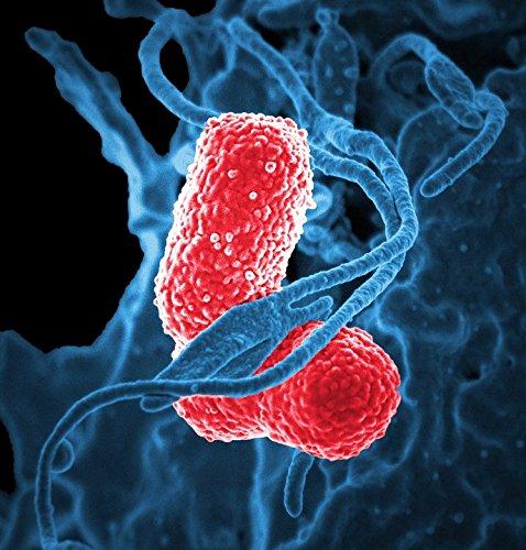 Home Comforts LAMINATED POSTER Klebsiella Pneumoniae Bacteriën Elektron Microscoop Poster Print 61 x 91.5