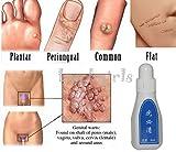 Fission 12 Hours Tu Kill -Wart Remover Skin Tag Mole & Genital Wart