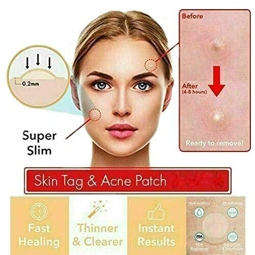 Perfekte Teebaum Skin Tag Patch, Akne Pickel Patch unsichtbare Aufkleber Haut (72 PCS)