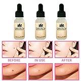 detgdye Organic Tags Solutions Serum, Mole & Skin Tag Repair...