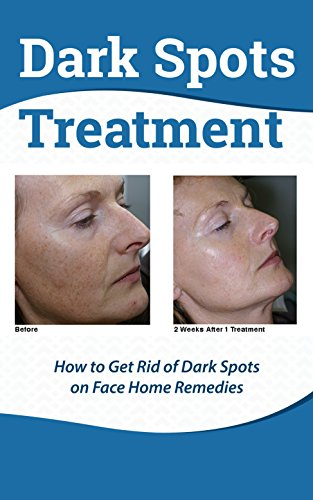 Dark Spots Treatment : How to Get Rid of Dark Spots on Face Home Remedies