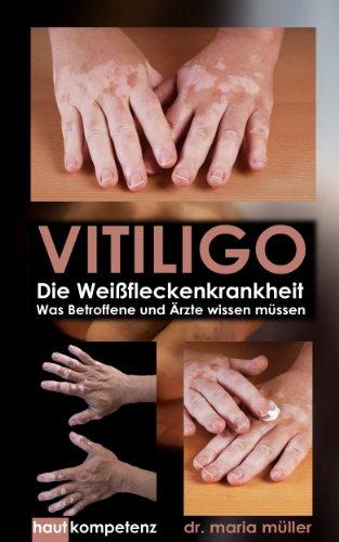 VITILIGO - Die Weißfleckenkrankheit: Was Betroffene und Ärzte wissen müssen