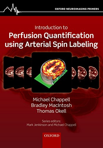 Introduction to Perfusion Quantification using Arterial Spin Labelling (Oxford Neuroimaging Primers) (English Edition)
