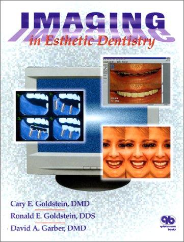 Imaging in Esthetic Dentistry California